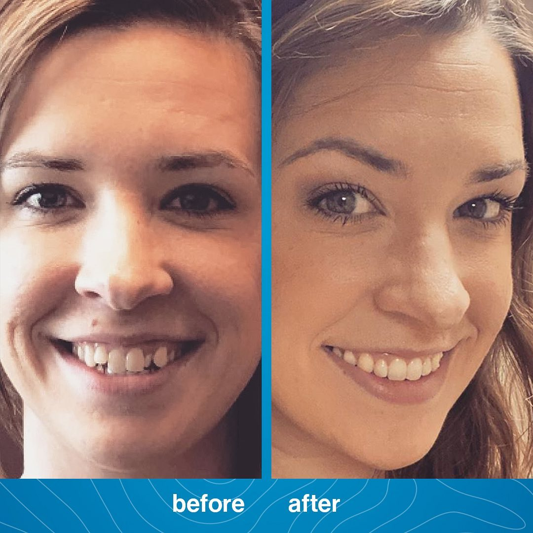 invisalign-braces-before-and-after-picture