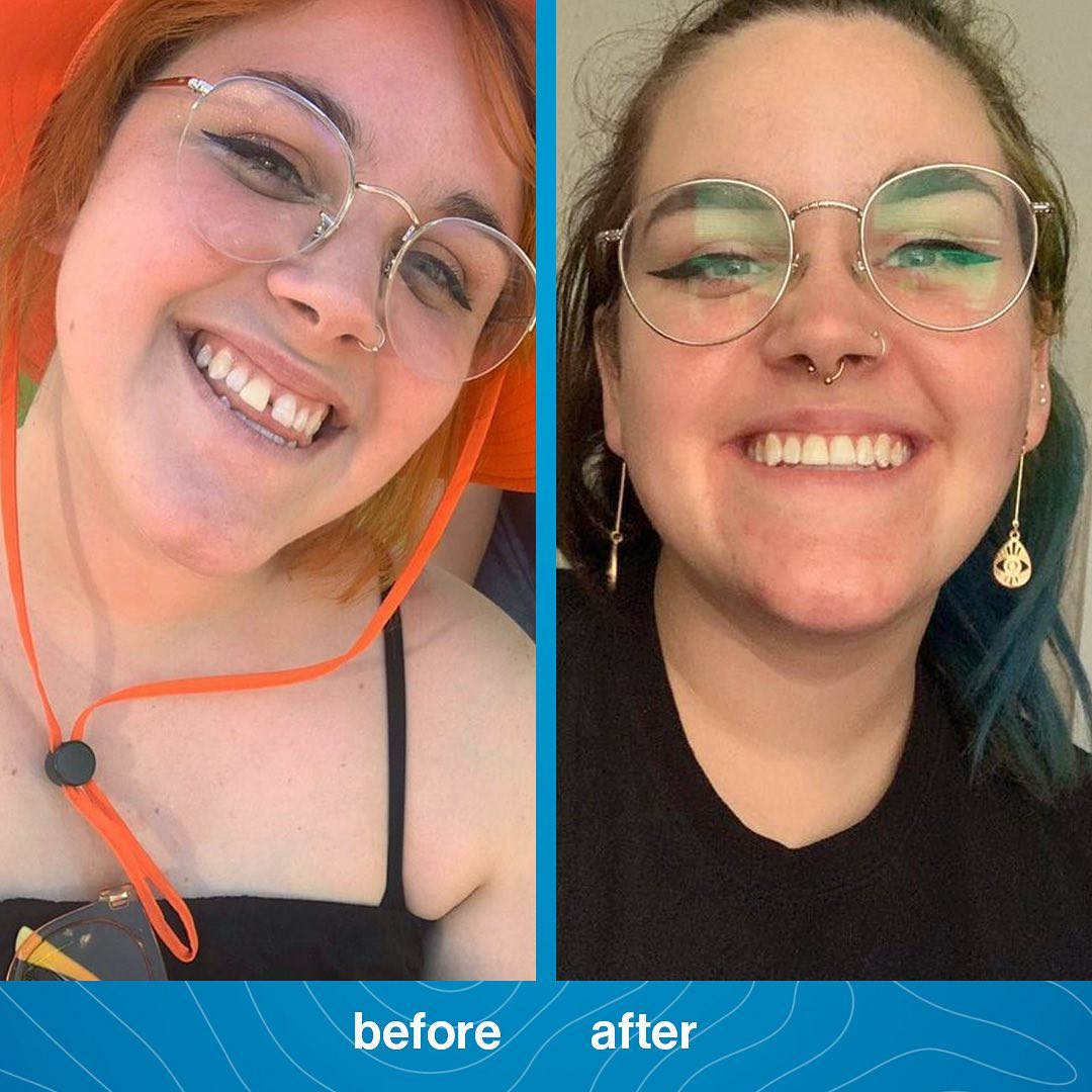 invisalign-before-and-after-treatment