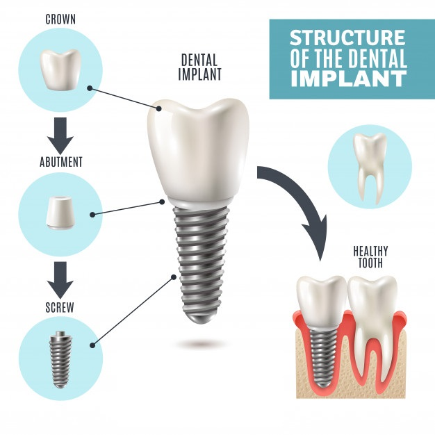 dental-implant-structure-infographic