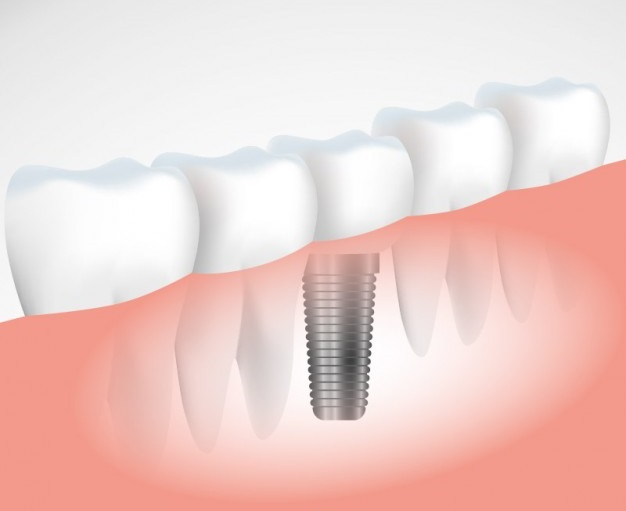 successful-dental-implant