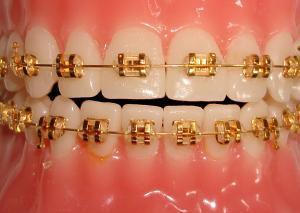 gold-braces-man