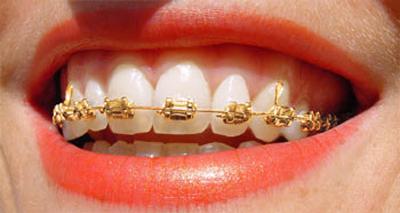 gold-braces-woman