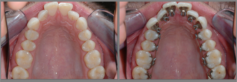 lingual-braces-before-after-image