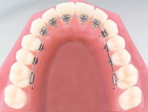 lingual-braces-illustration