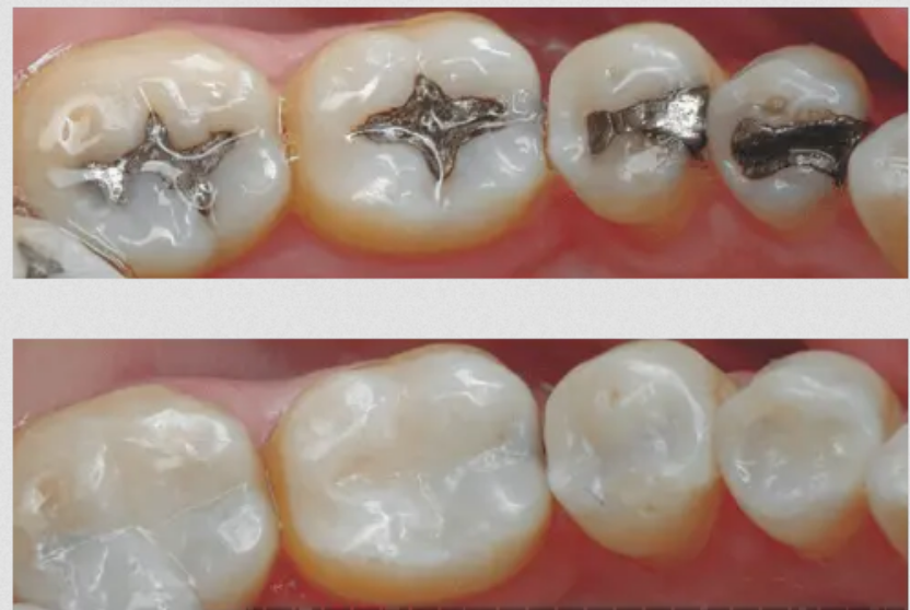 Dental Cavities with White Composite Filling-before-after-pciture