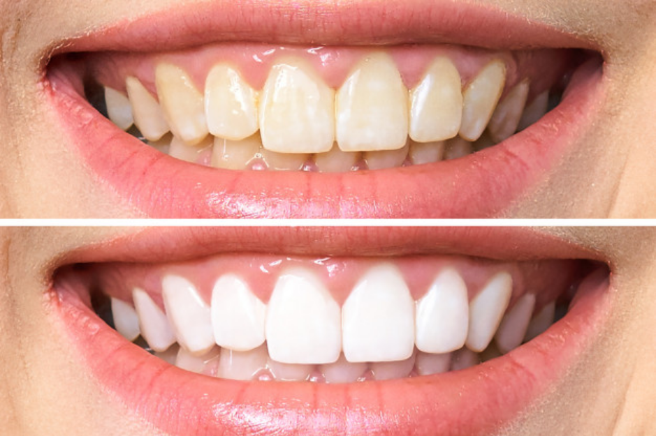 teeth-whitening-before-and-after-picture