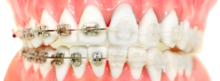How Much Does Ceramic Braces Cost in the U.K.?