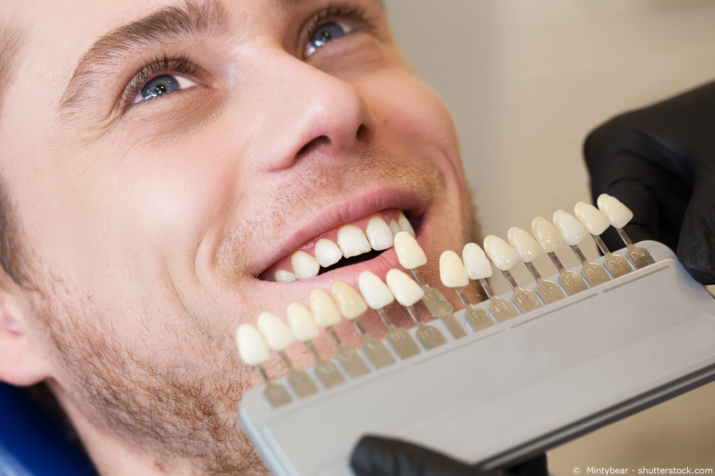 How to Choose the Right Shade for Teeth Whitening