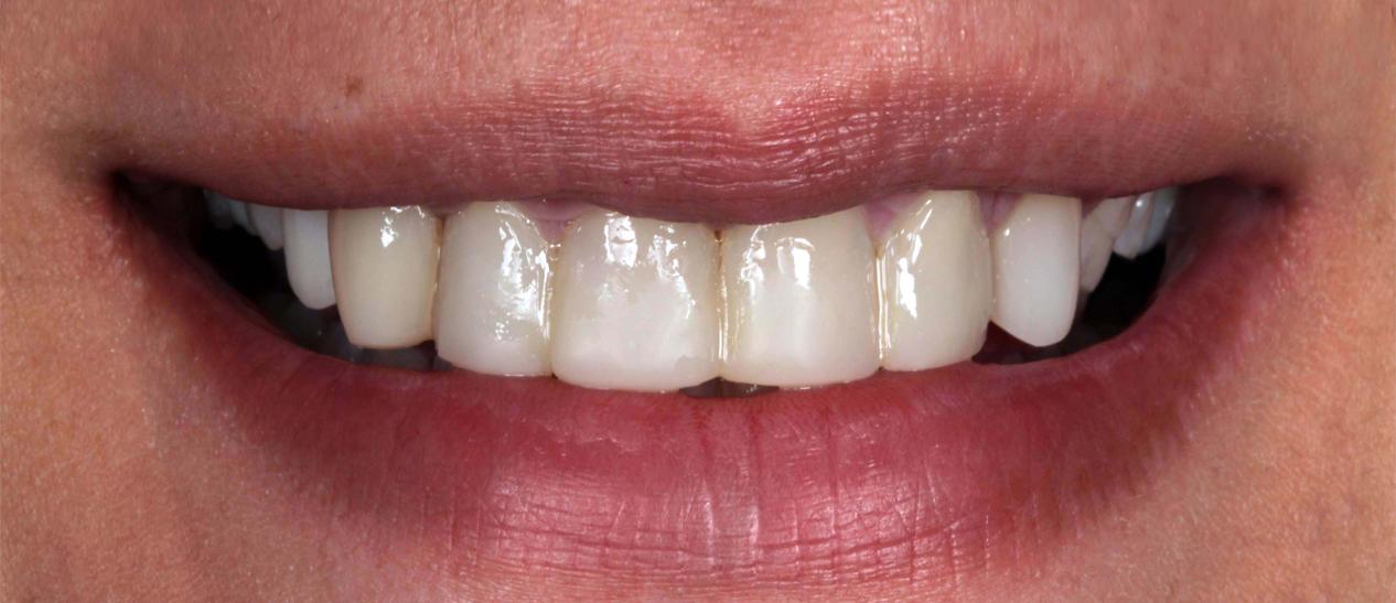 emax-veneers-before-treatment