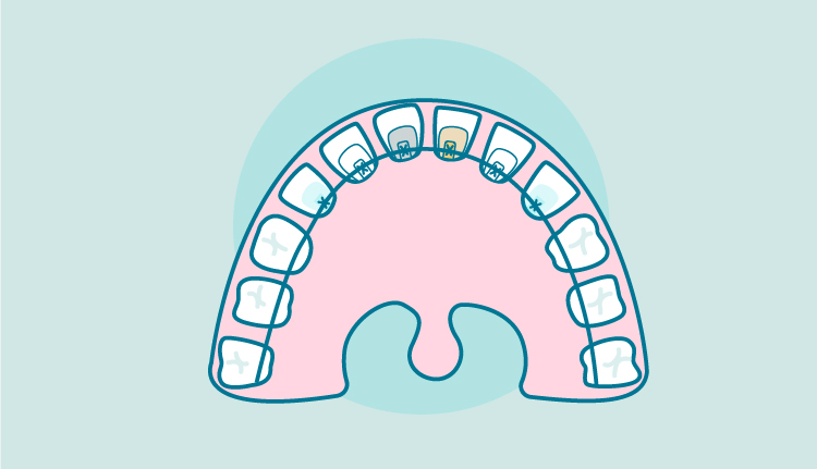 How Much Does Lingual Braces Cost In the U.K?