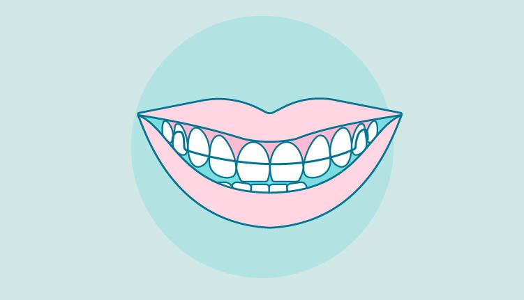 dental-retainers-illustration