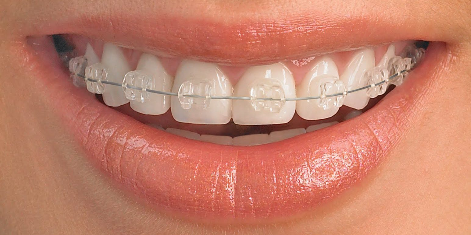 sapphire-Ceramic-braces