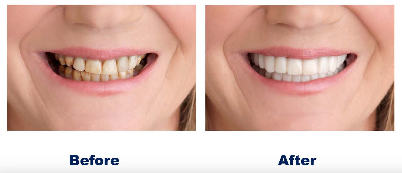 snap-on-smile-before-after-picture