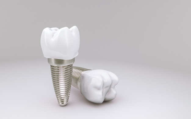 How much does a dental implant cost UK in 2021?