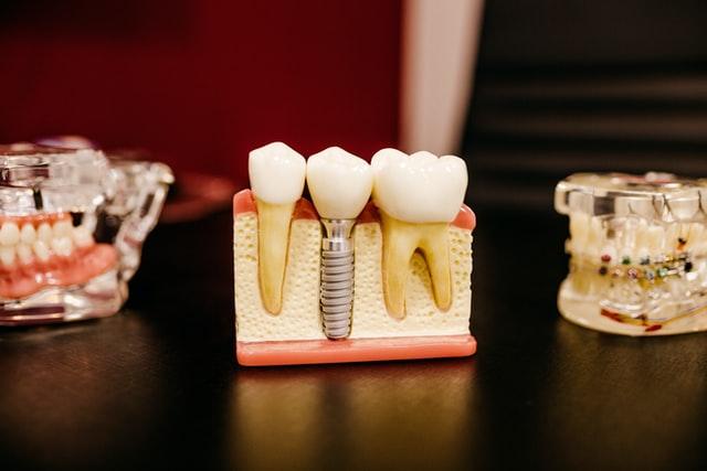 dental-implant-plastic-model