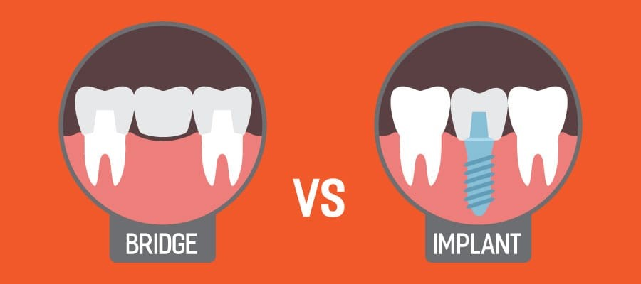 dental_implant_vs_dental_bridge