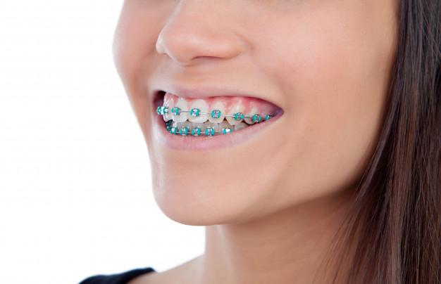 green-color-dental-braces