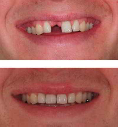 What is the best option for a missing front tooth?