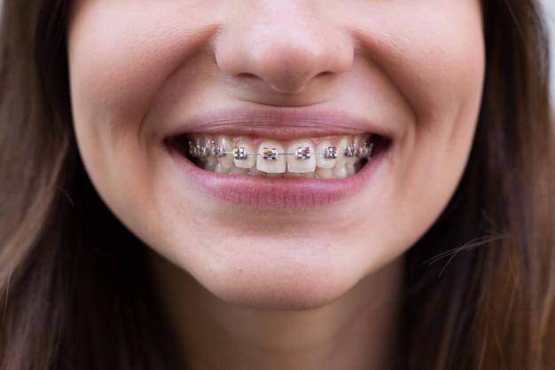 pink-colored-dental-braces