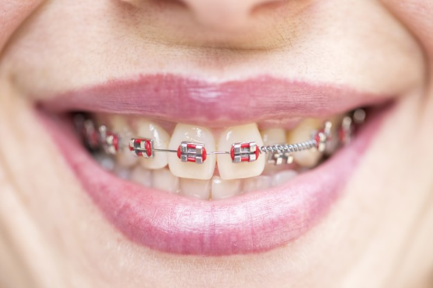 Popular Braces Colors for Girls and Boys – Is black a good braces color?