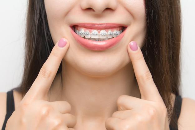 silver-colored-braces