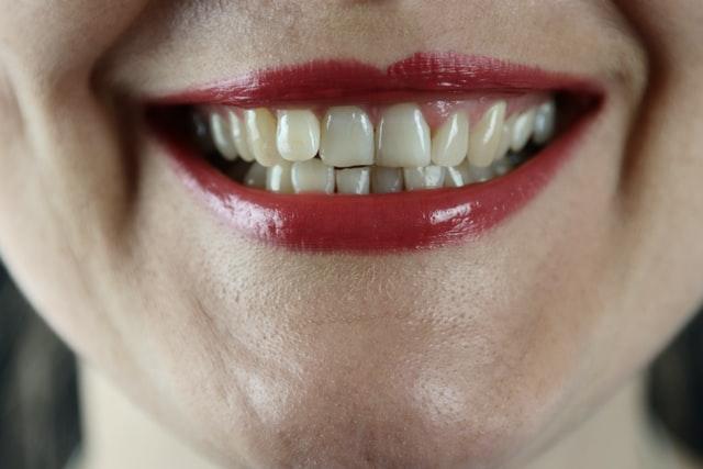 white-teeth-woman