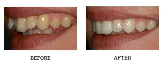 inman-aligners-before-and-after